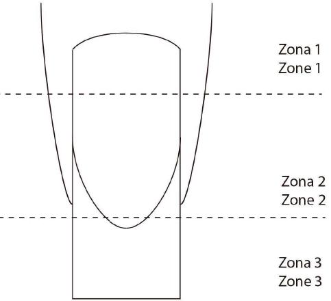 zones-ongles.jpg